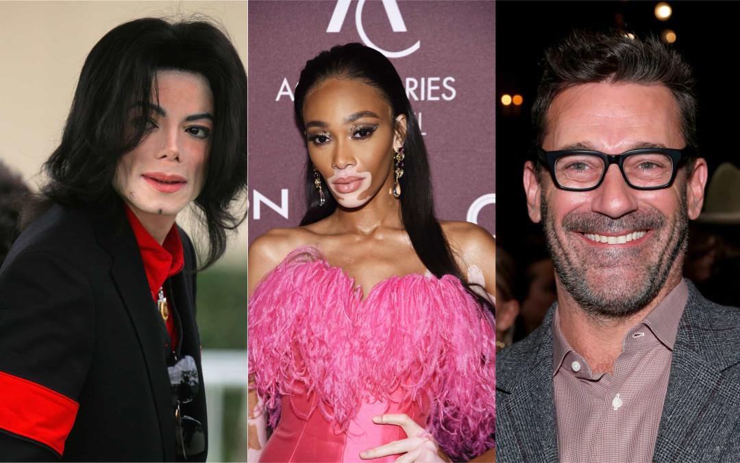 Les célébrités qui ont le vitiligo