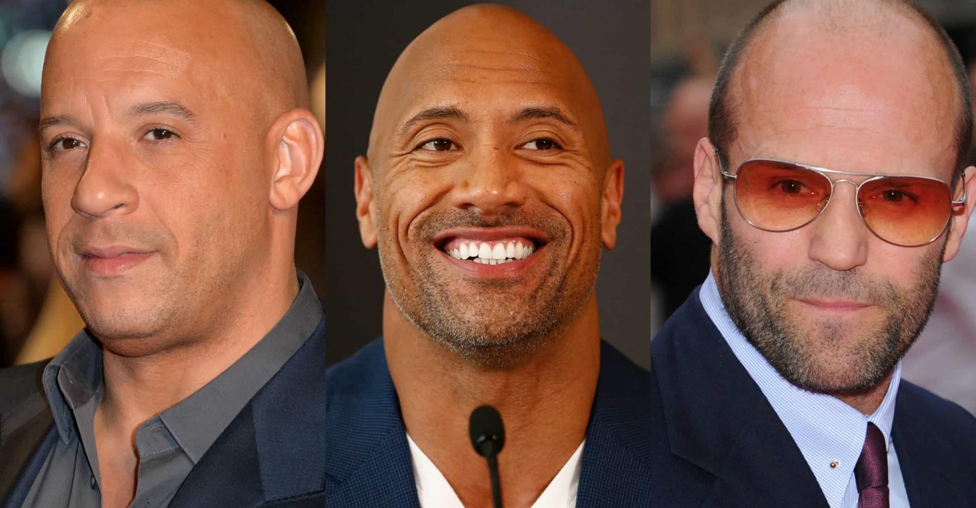 Diese Männer brauchen keine Haare, um sexy zu sein