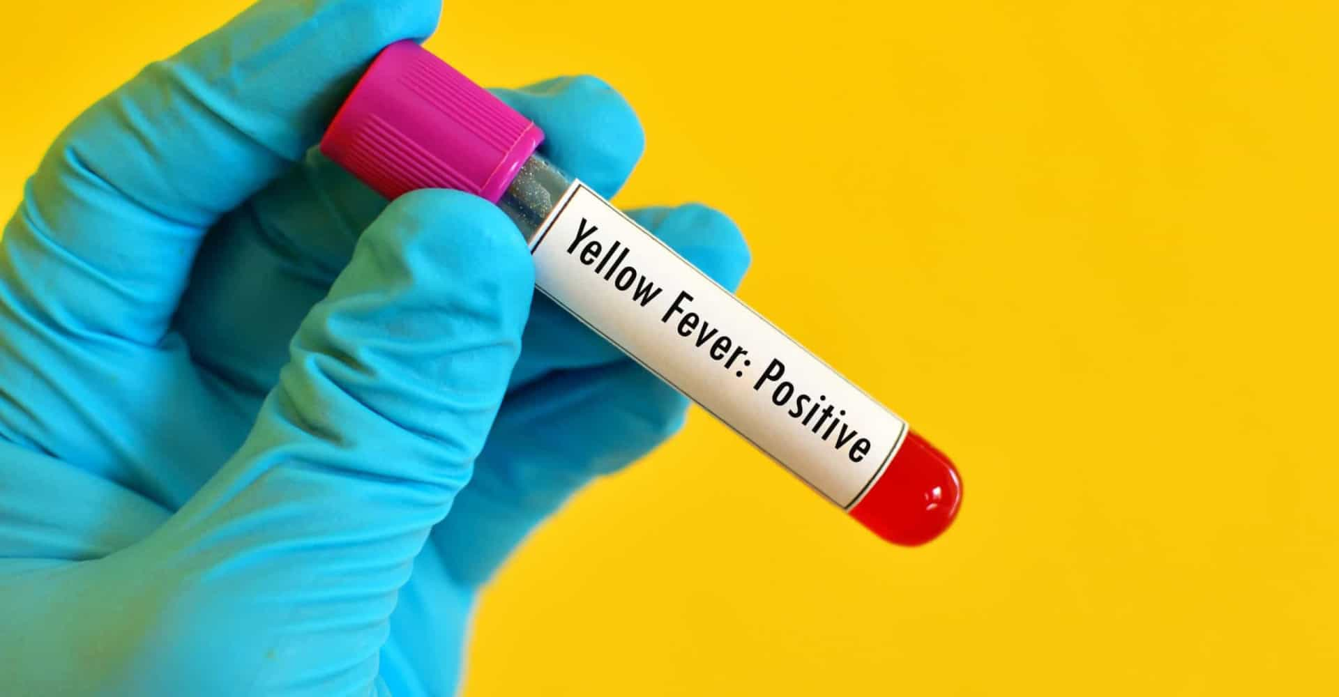 Los oscuros secretos de la fiebre amarilla