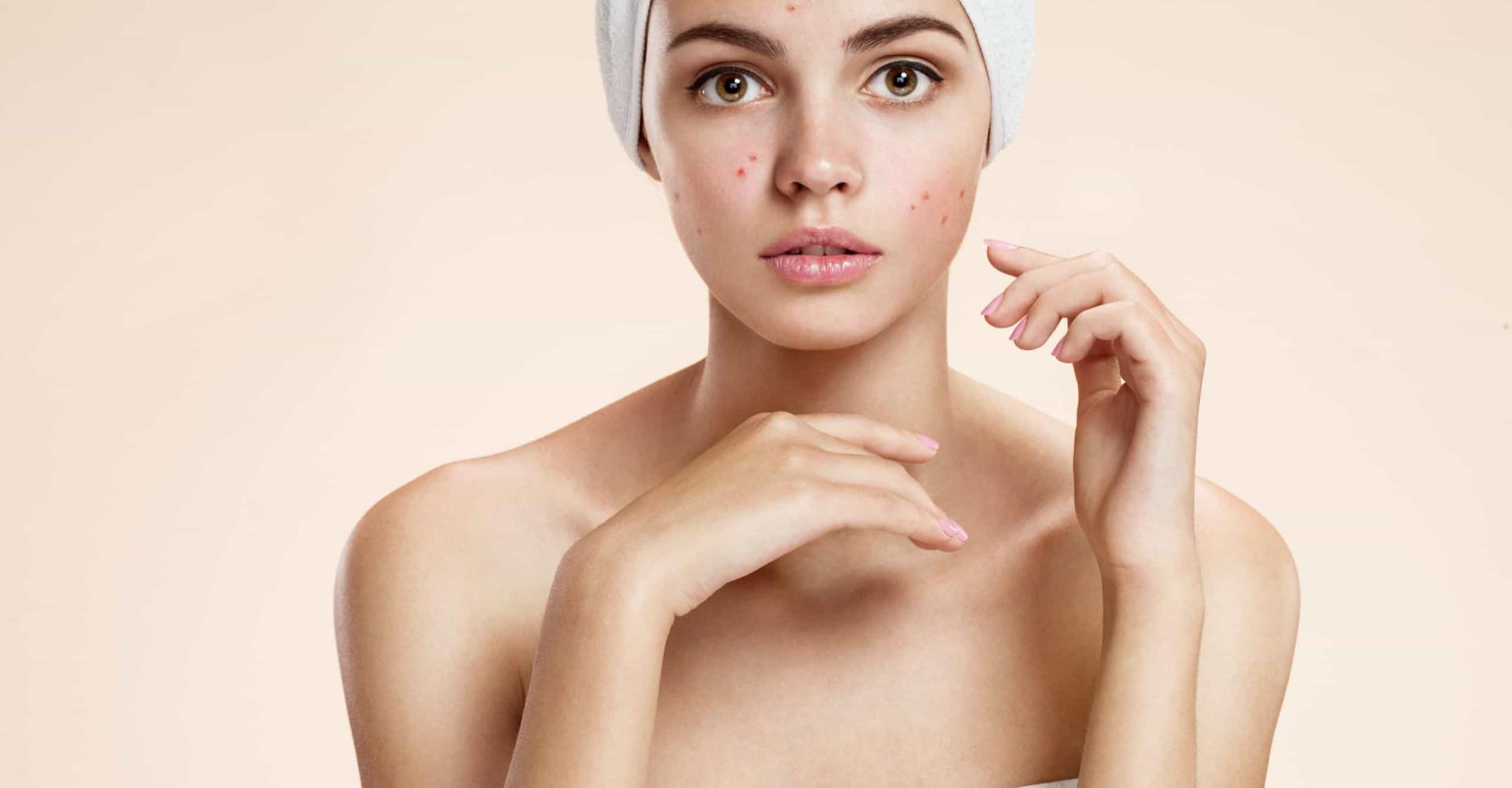 ¿Tienes acné? Esta puede ser la razón