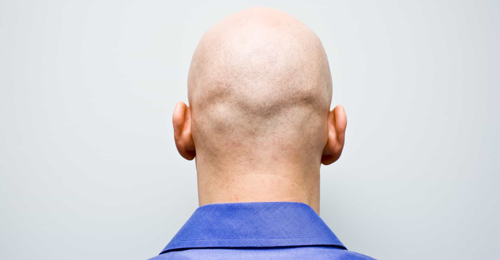 Myths and truths about hair loss