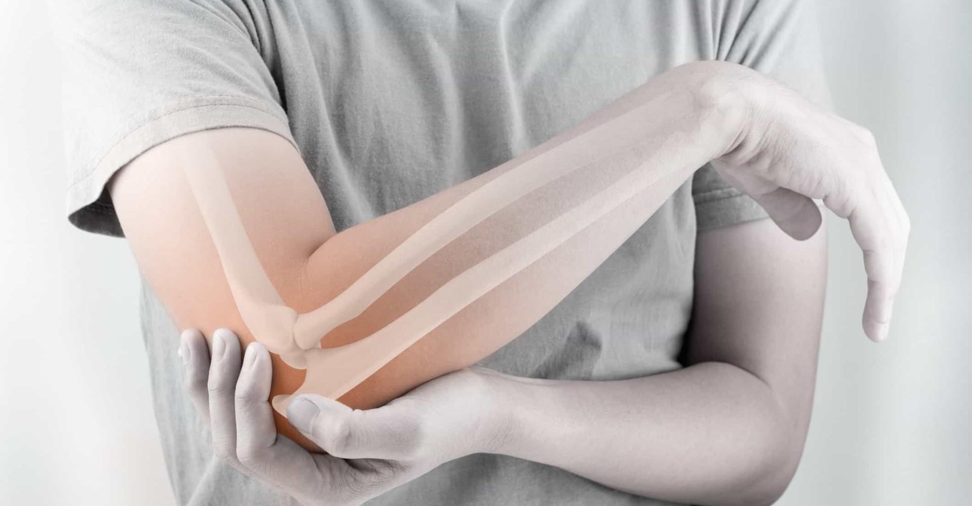 "L'ostéoporose: une maladie ""silencieuse"""