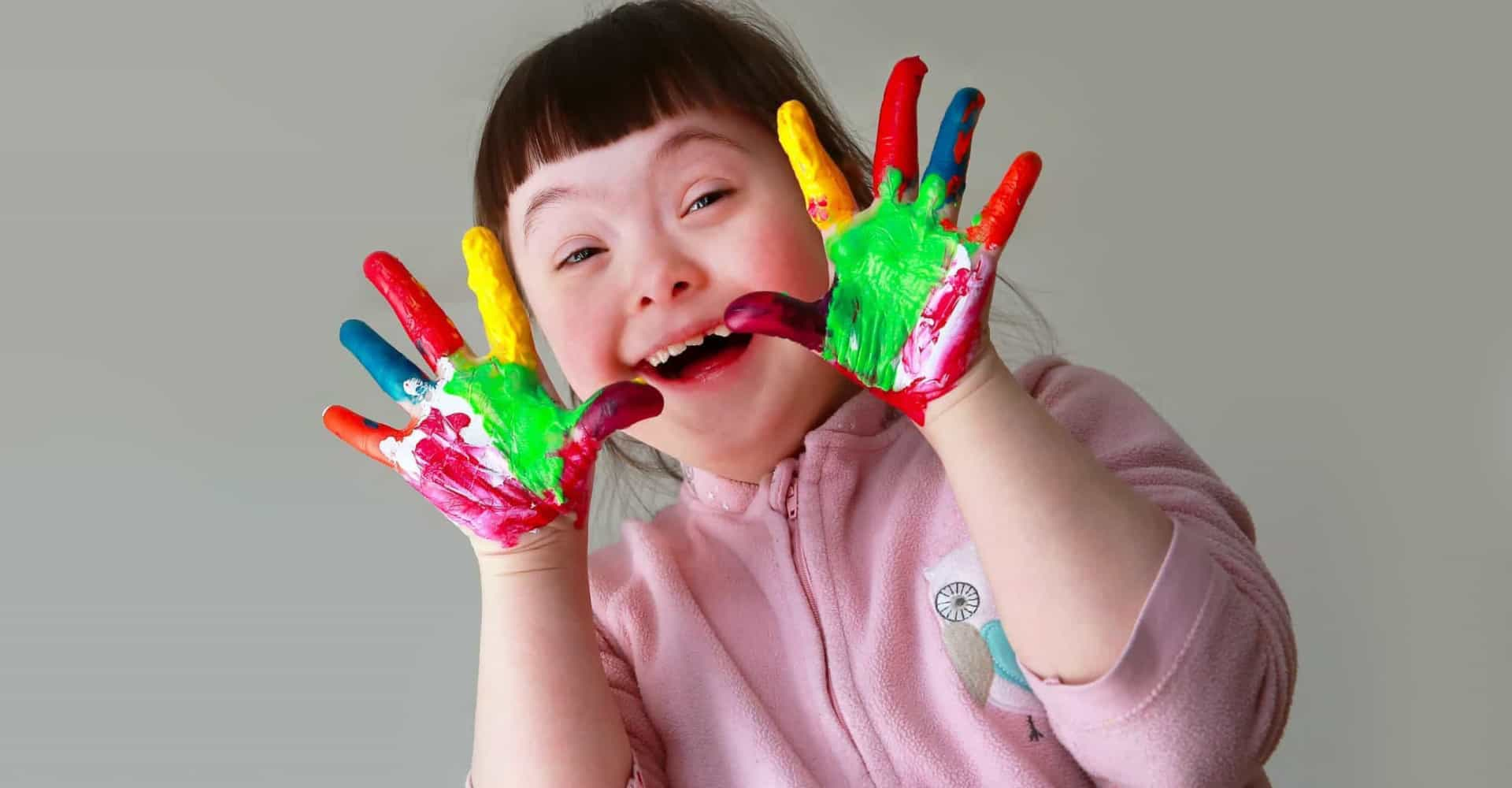 All you need to know about Down syndrome