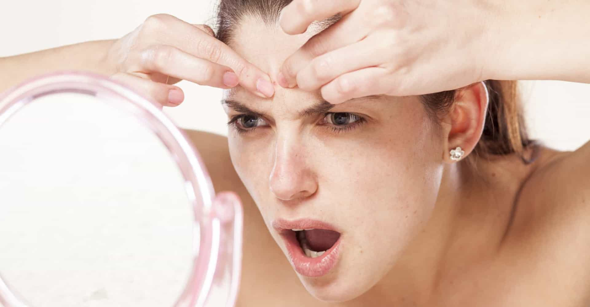 The ultimate guide to preventing and treating acne