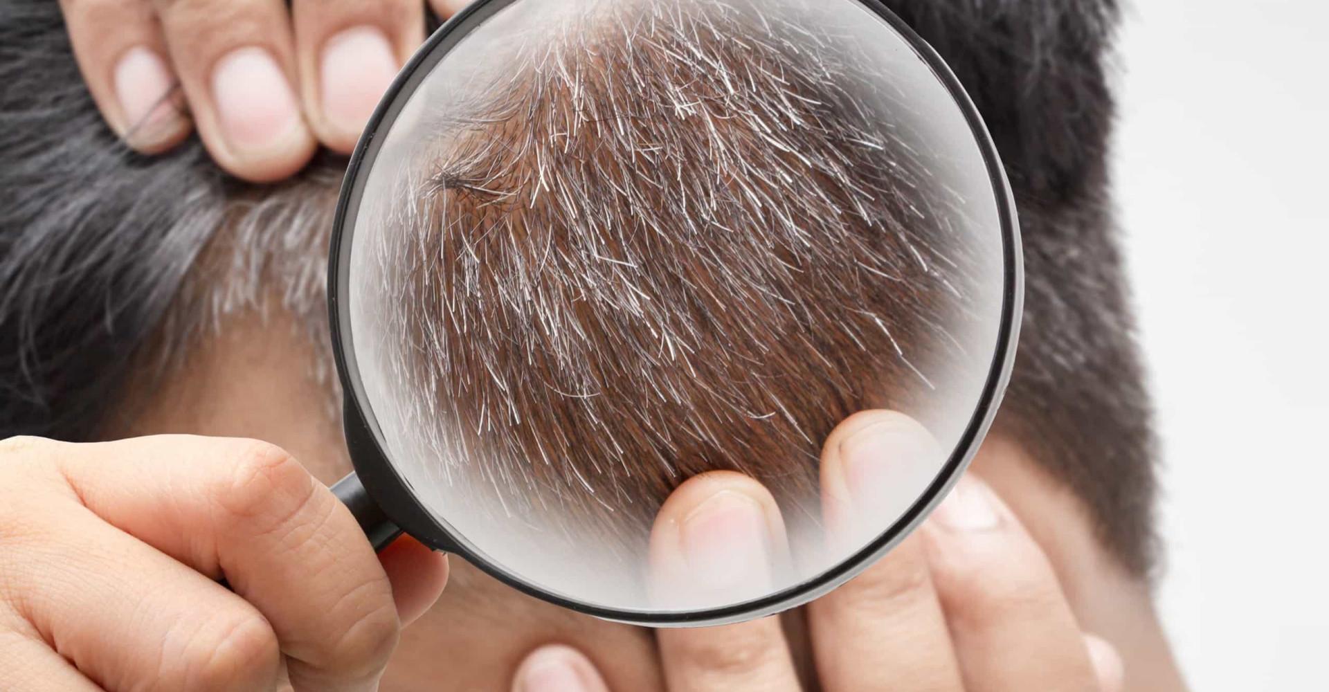 Drie mogelijke oorzaken waarom je jong grijs wordt