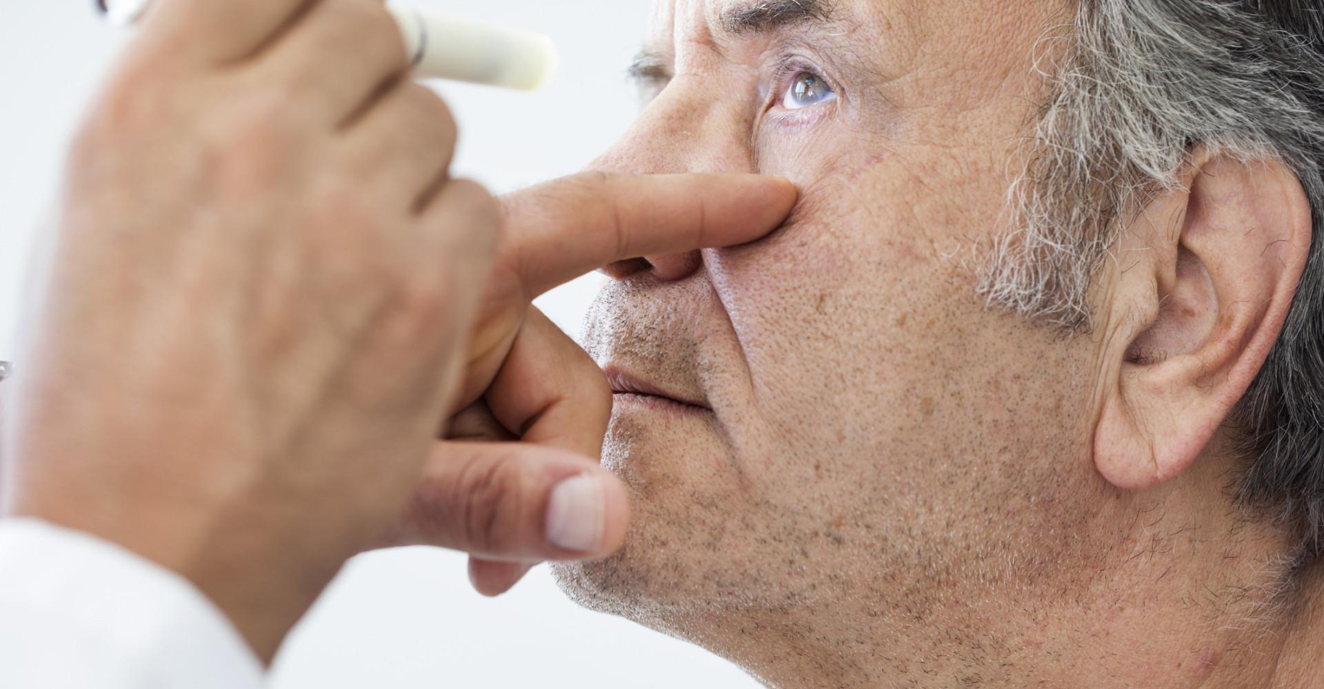 Occhi gialli: le possibili cause