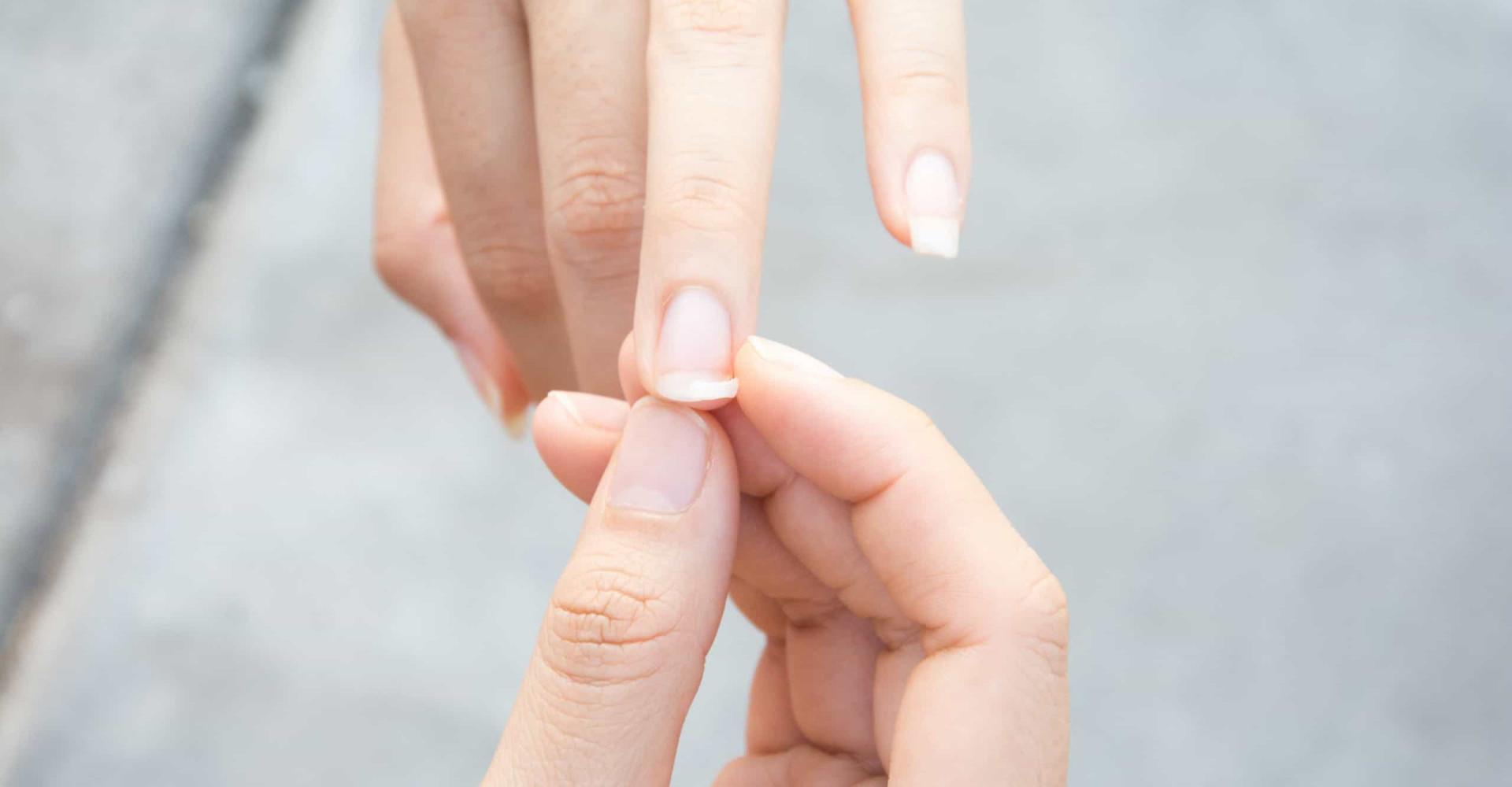 Zo herstel je je afgebroken nagel