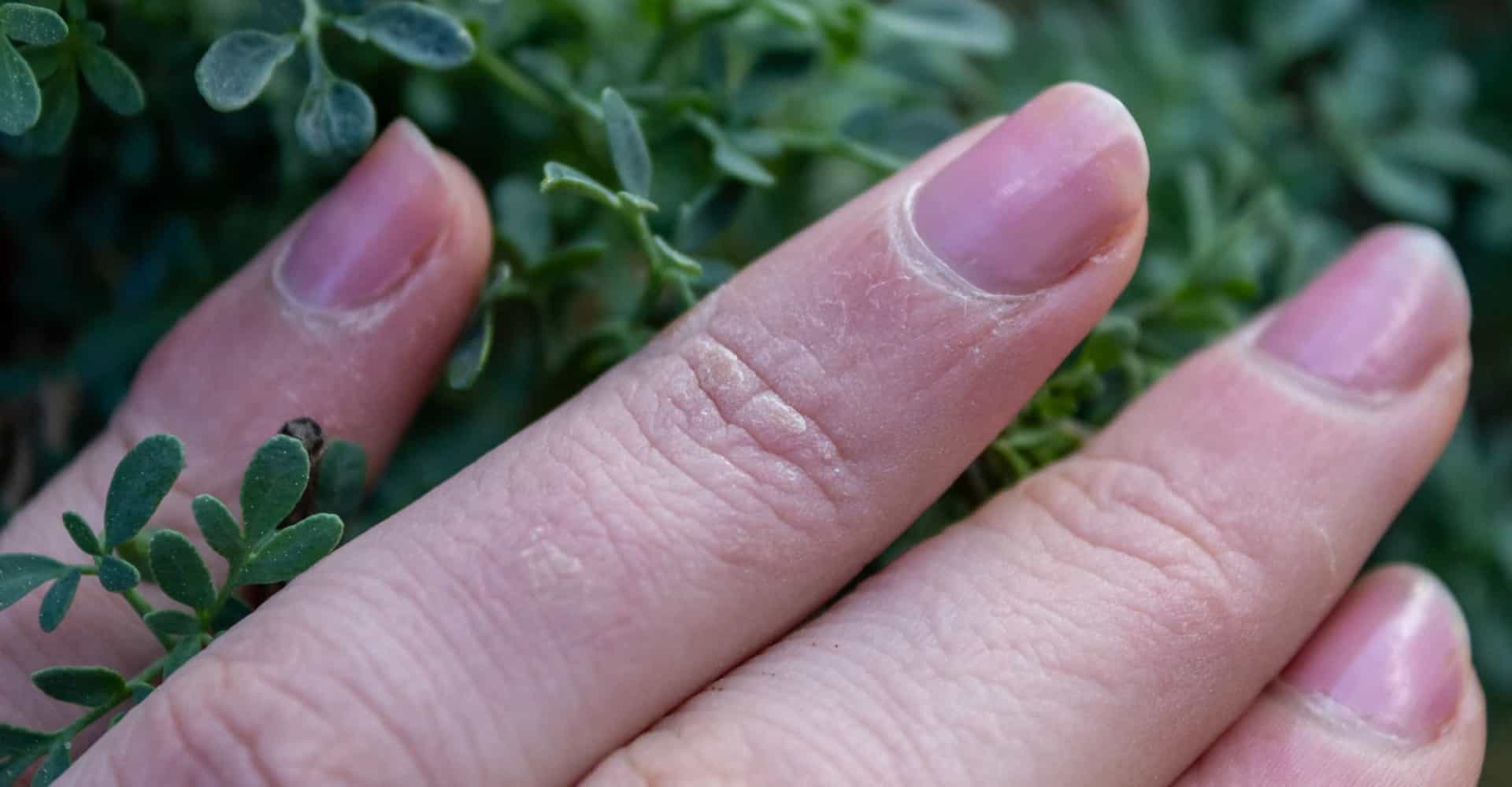 Tips tegen velletjes aan je vinger