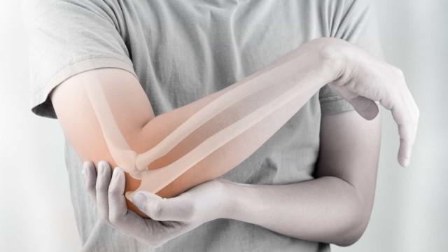 Osteoporosis: ¿cómo puedo fortalecer los huesos?