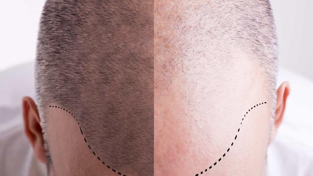 Welke BN'ers ondergingen een haartransplantatie?