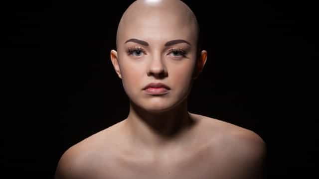 Is hair loss high fashion? A viral trend is making bald beautiful