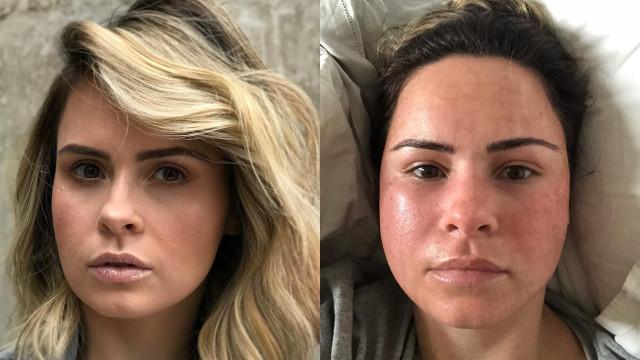 Ex-BBB Ana Paula Renault aparece com o rosto deformado e assusta internautas