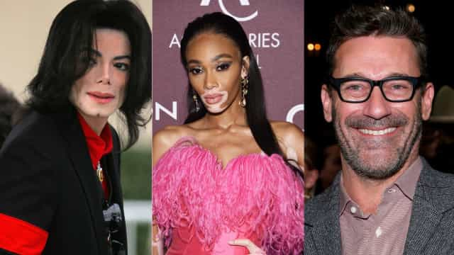 Celebrities who have vitiligo