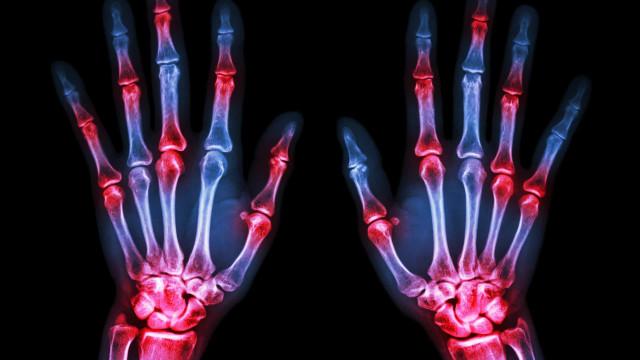 Natural remedies to combat rheumatoid arthritis