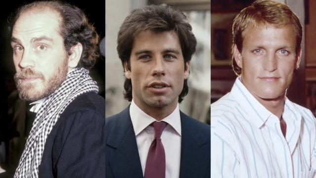Skalliga kändisar när de hade hår